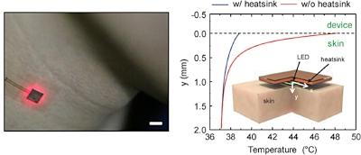 Metallic heat sink.jpg