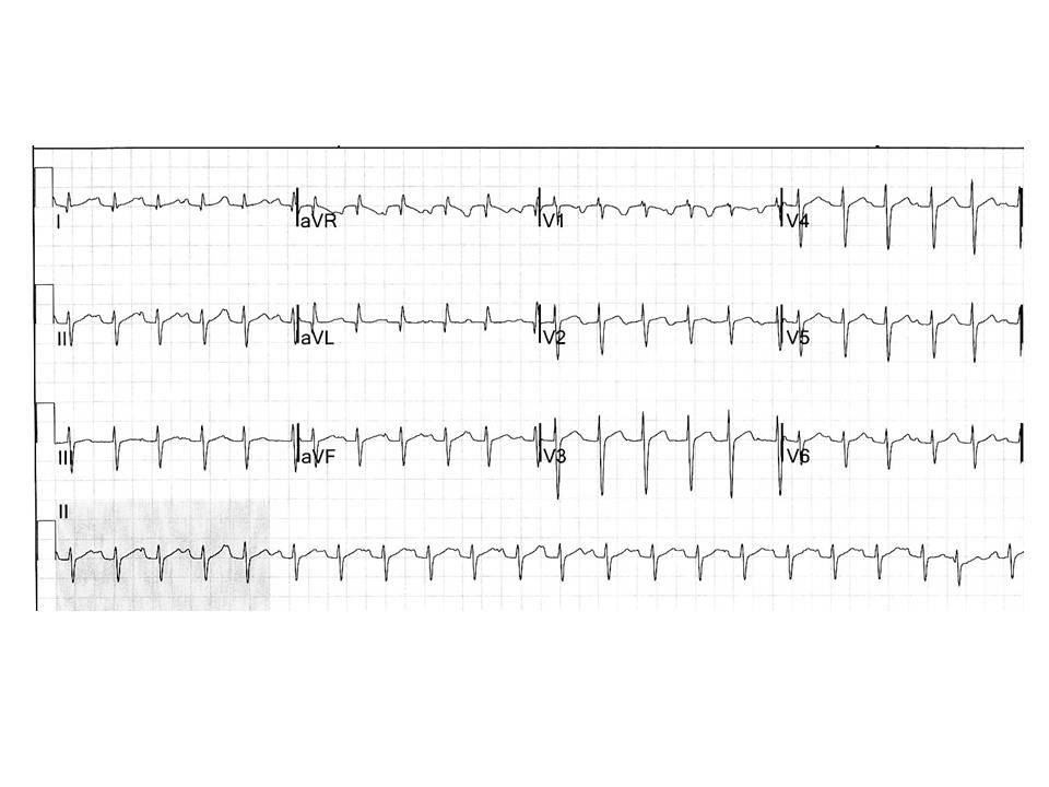 Upside down ECG Figure 5.jpg