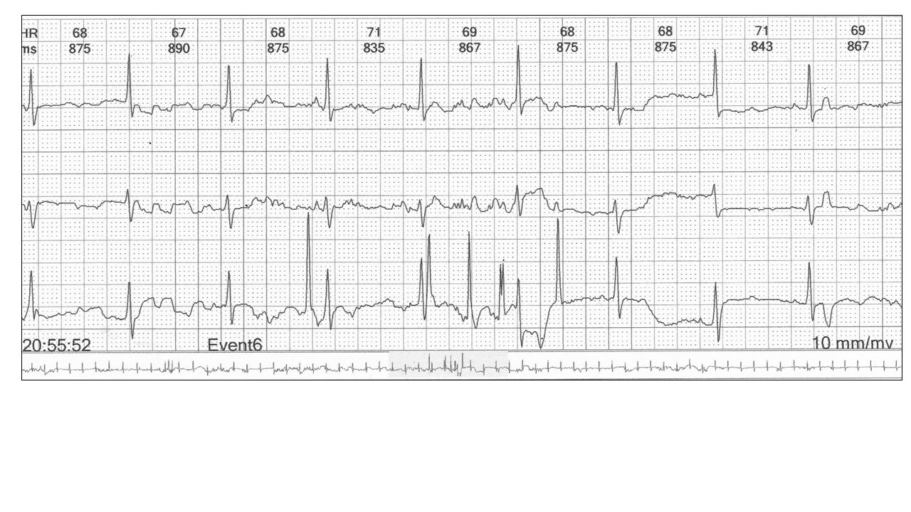 Image 5: The trace above demonstrates that you need all three channels to confirm sinus rhythm.