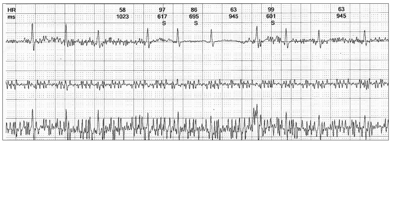 Image 6: This example reveals you need all three channels to confirm sinus rhythm.