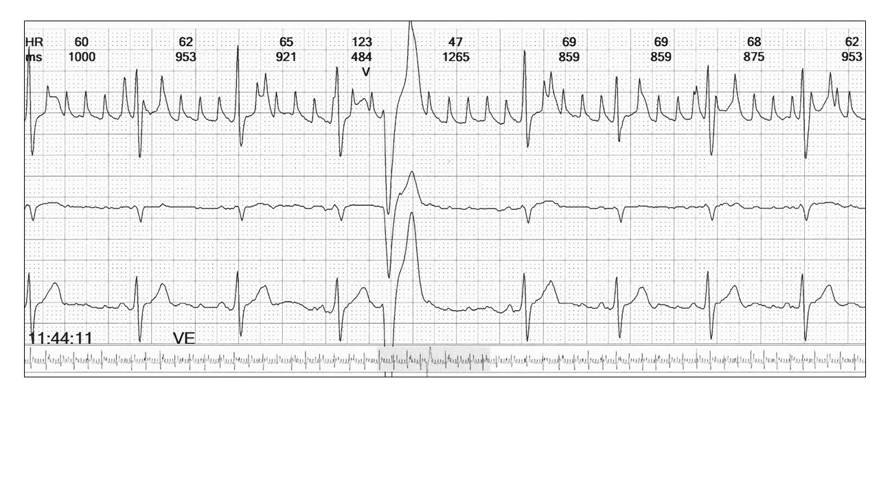 Image 7: To exclude an atrial tachyarrhythmia diagnosis you require all three channels.