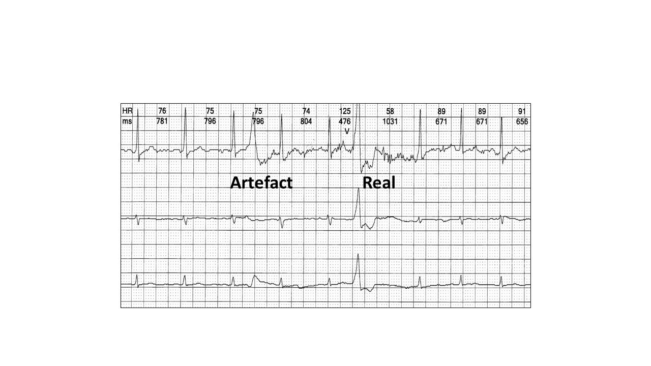 Image 10: The artefact on the top channel makes the diagnosis difficult. The bottom two channels confirm the artefact and ventricular ectopic.