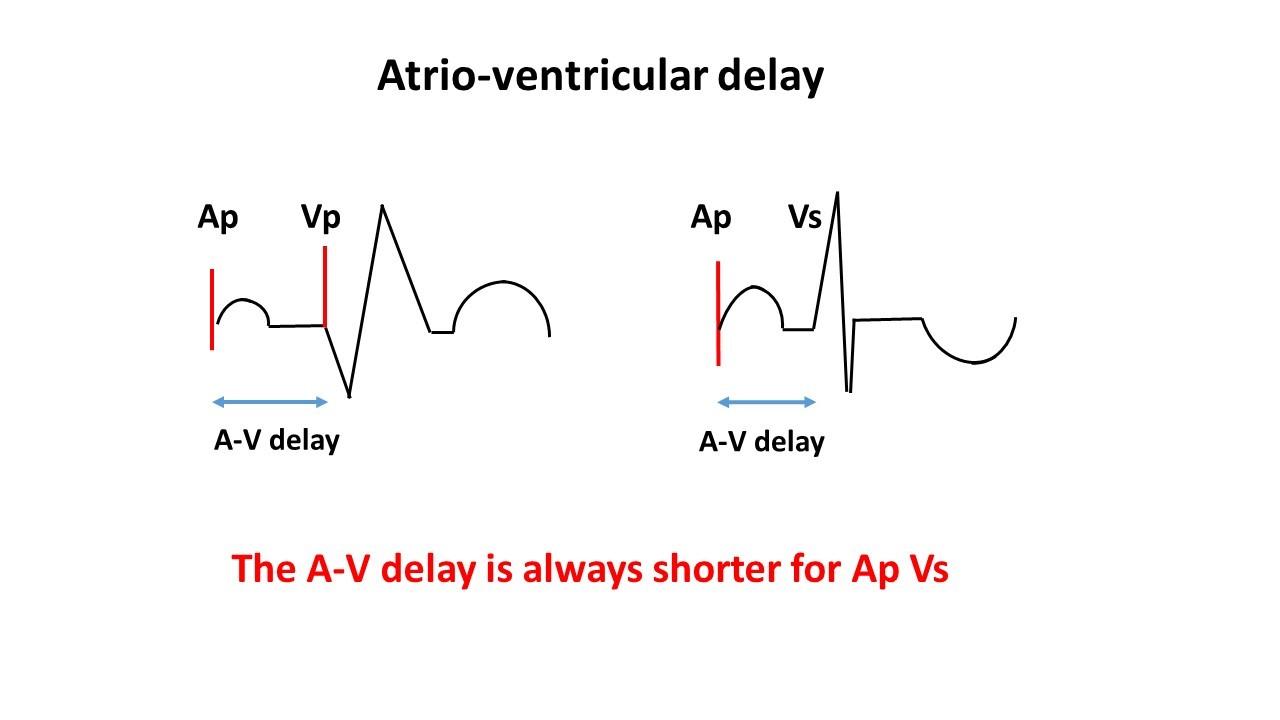 AV delay 1.jpg