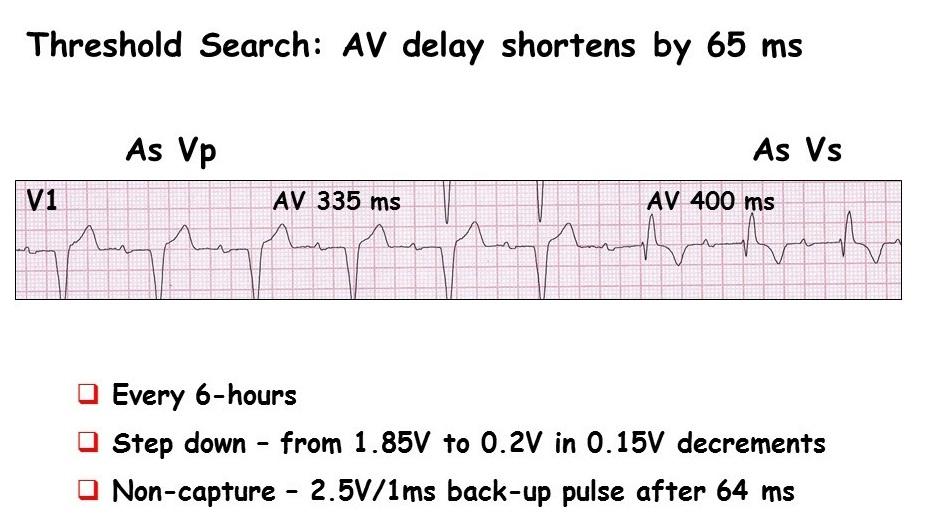 AV+delay+4.jpg