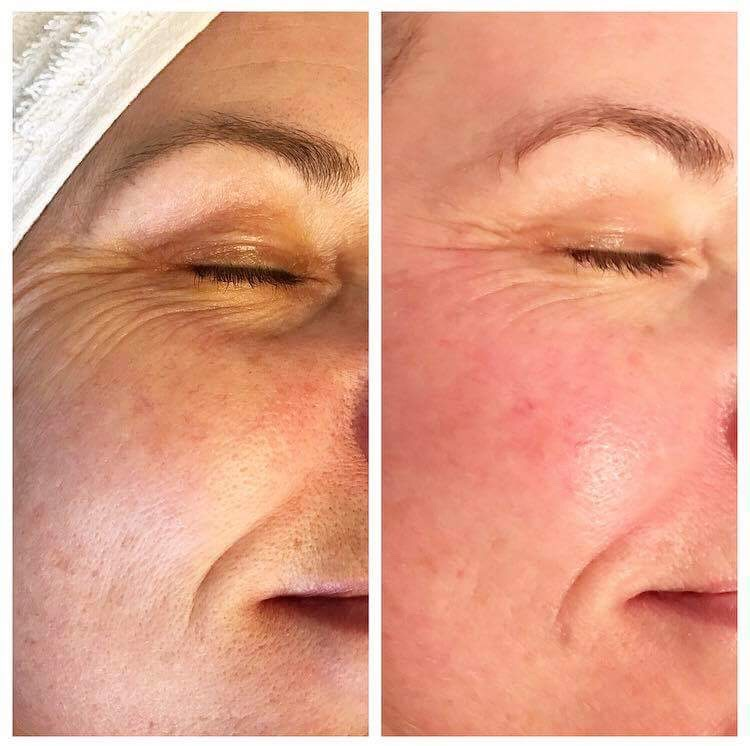 Crystal Clear COMCIT Frozen Facial before and after - Pure Beauty Anglesey APPROVED.jpg