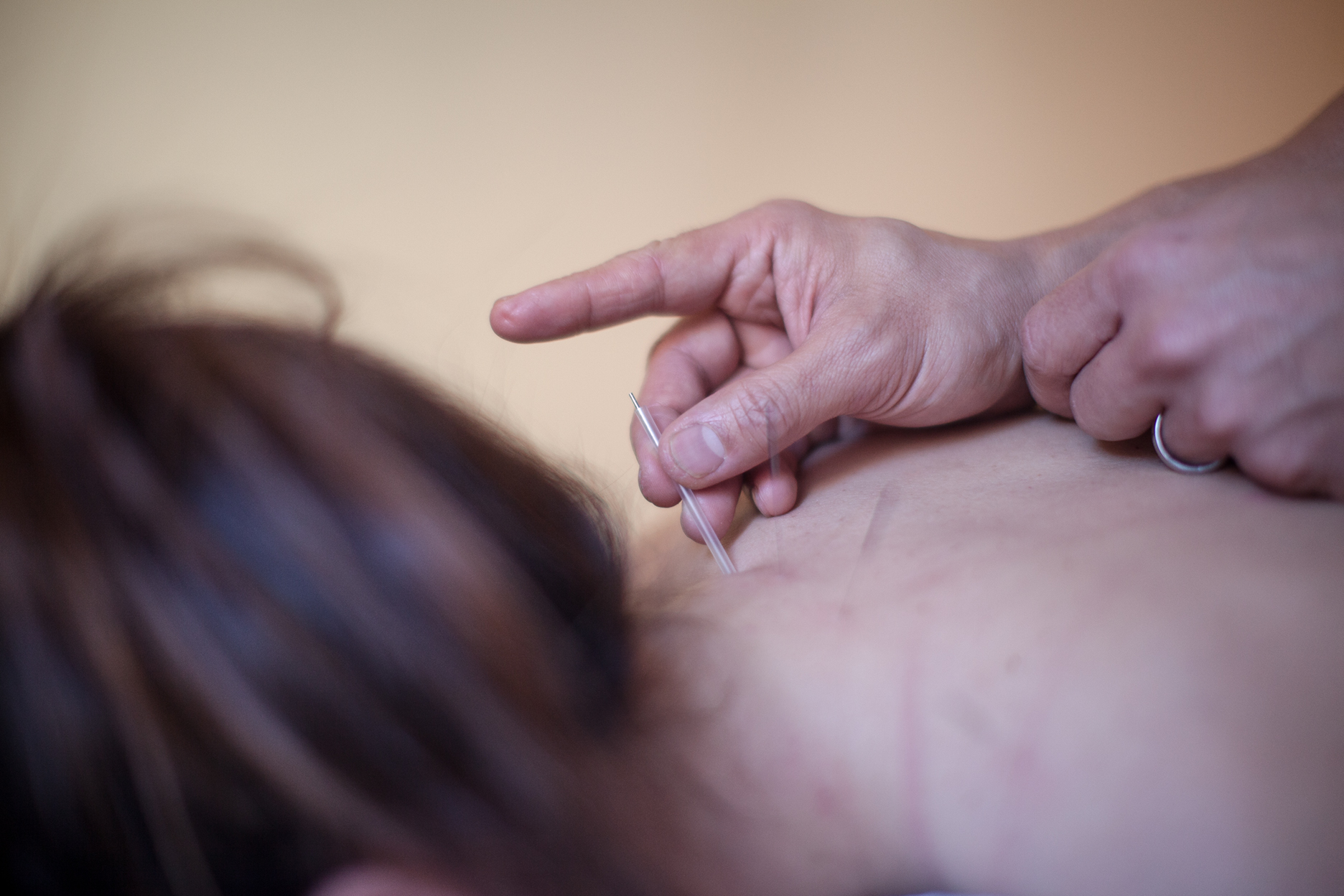 Dr. Cristina Allen, Acupuncture Provider