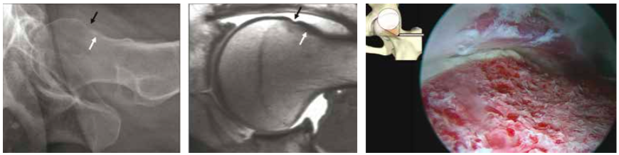 Cam type FAI in a 37-year-old woman and the joint after arthroscopic treatment
