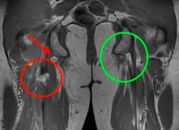 An MRI is the gold standard for identifying hamstring tendon tears. The red circle signifies an injured tendon, whereas the green circle shows a healthy tendon.