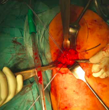 Operative repair of a hamstring tendon is recommended when there is a complete tear
