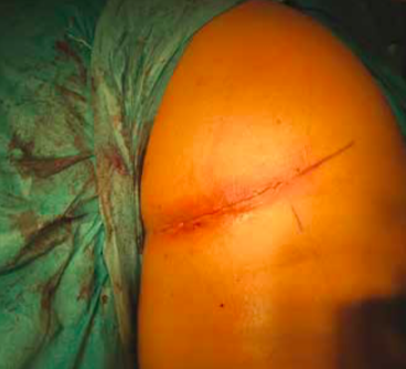 The incision is made in the buttock/upper thigh area where the torn tendon end will be found