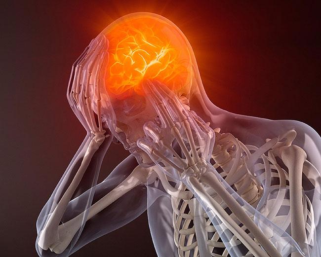 Migraineklachten en regressietherapie? Dat verklaart een hoop kopzorgen