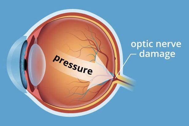 Eye pressure causes damage to optic nerve