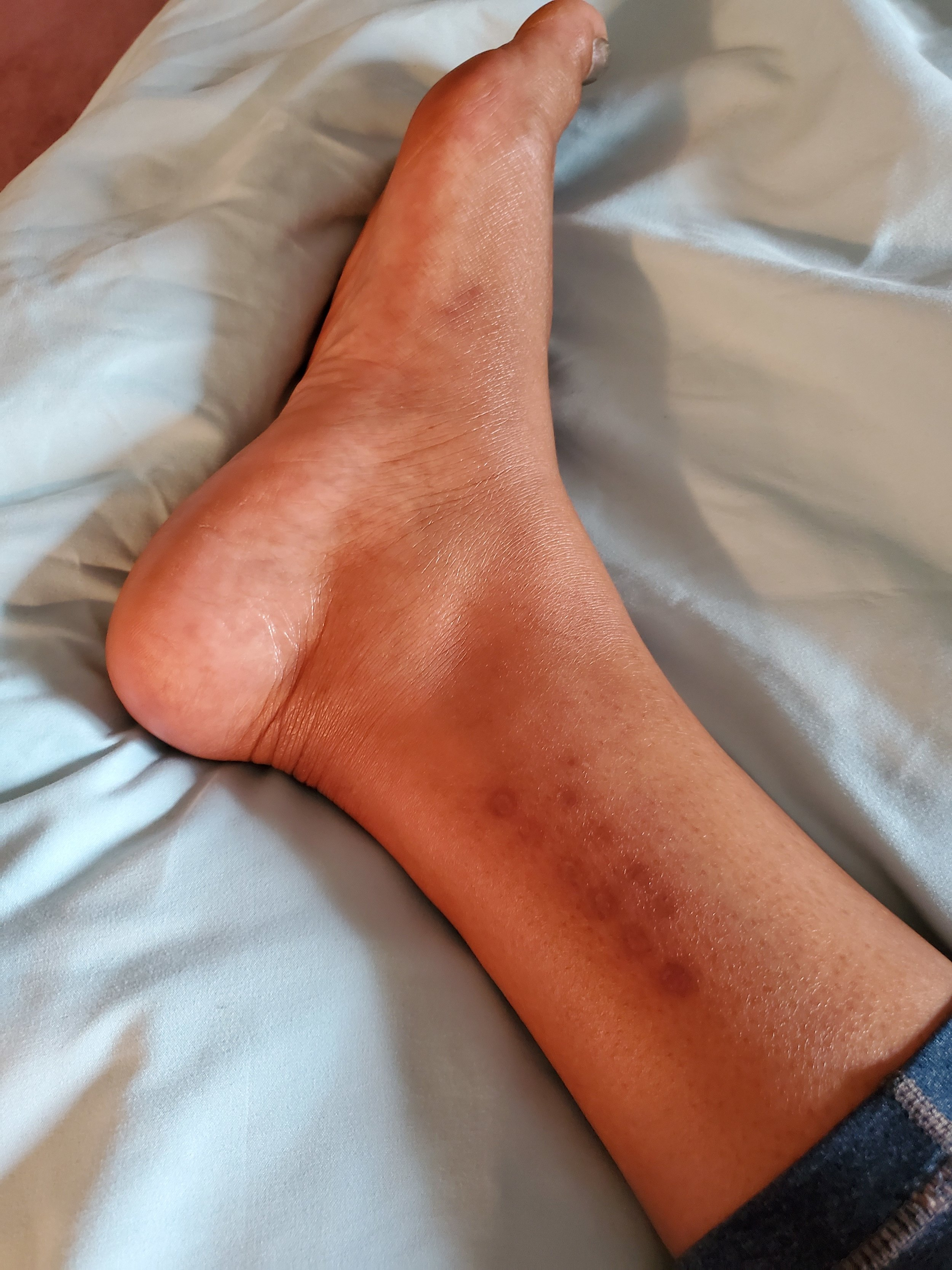 My Kambo scars after 3 ankle applications. I tended them so that the scars would be more prominent. I'm proud of the work that I did and the scars remind me of how strong I am.