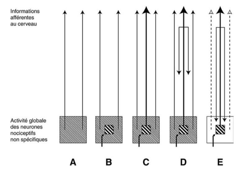 Interprétation hypothétique de l'activité globale des neurones spinaux et trigéminaux liés à la nociception. D'après Calvino B et Grilo RM. Le contrôle central de la douleur. Revue du rhumatisme 73 (2006) 10-18