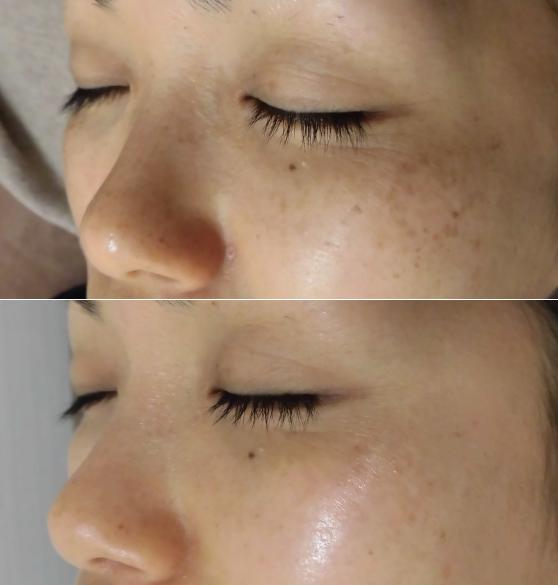 Foto Facial RF - Skin Rejuvenation in Sasebo