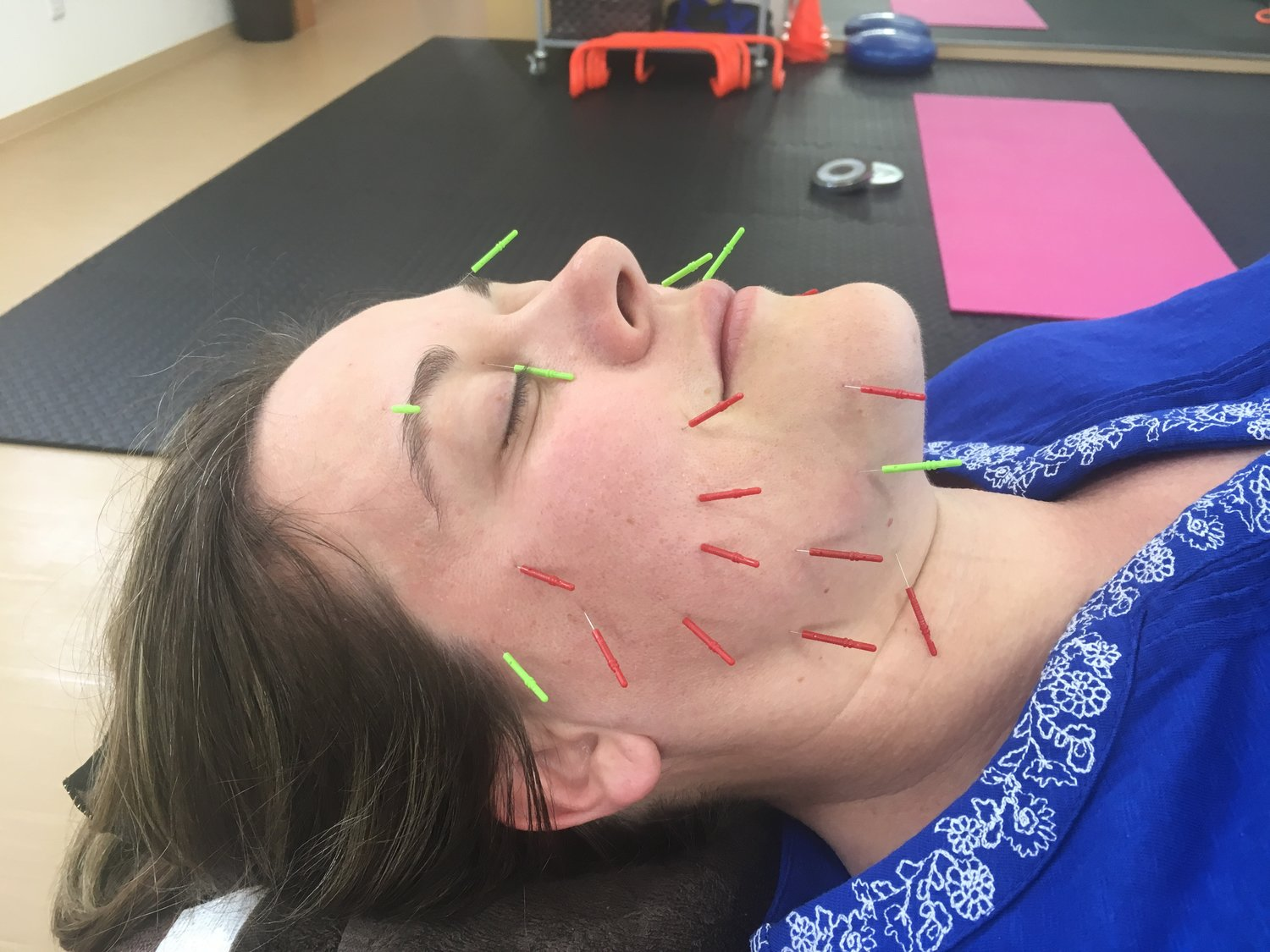Facial by Acupuncture at Tsubaki Acupuncture