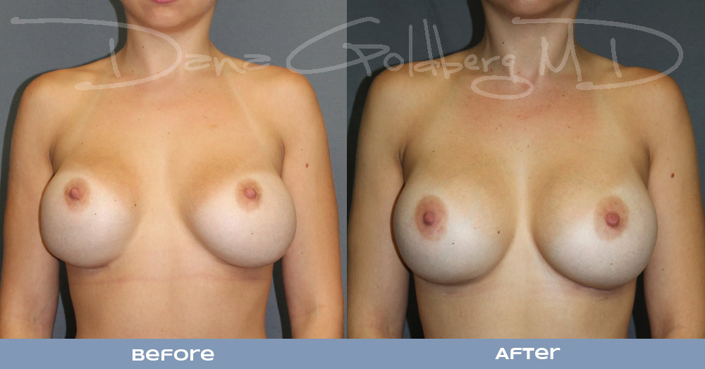 breast_implant_revision_surgery_before_and _after_1.jpg
