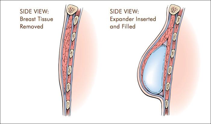 illustration_of_breast_tissue_expander_700px.jpg