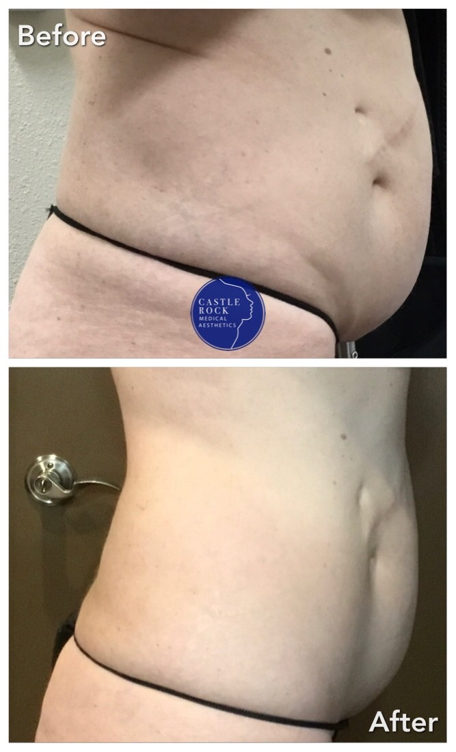 Body Contouring Right Abdominal Profile After 8 Treatments