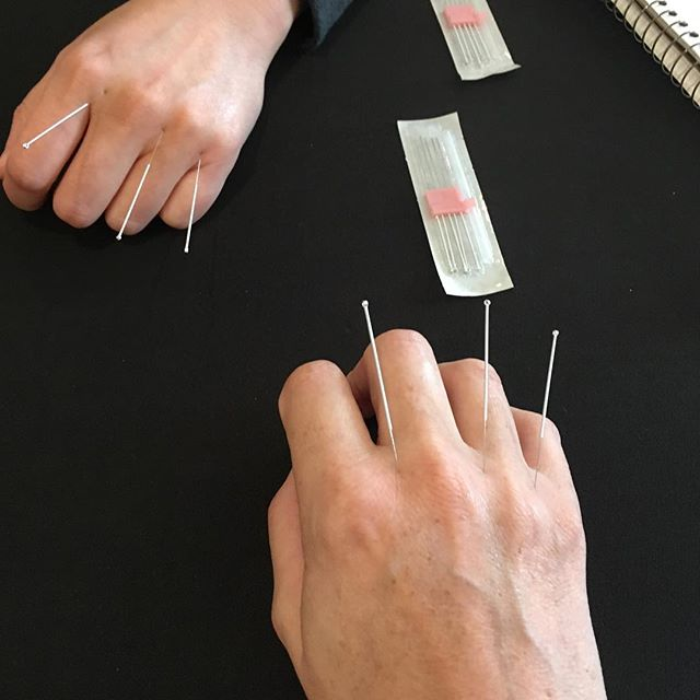 Wolverine ain't got nothing on us! Fun with acupuncture needles - this is the San Cha group. #balancemethod #acupuncturerocks #alwayslearning #academyofacupuncture