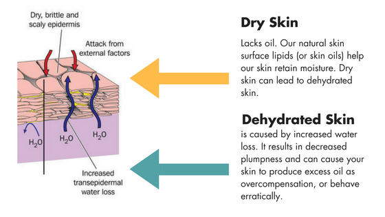 Dehydrated Skin.png