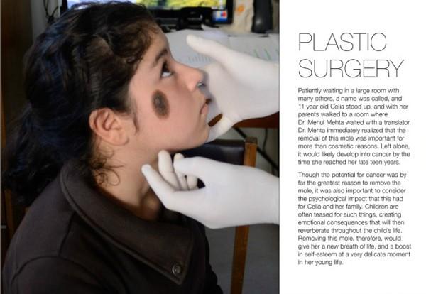 plasticsurgeryessay-e1370488500144.jpg