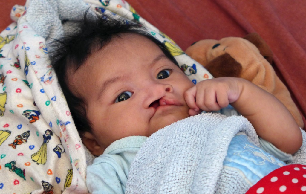 Baby waiting for cleft lip surgery