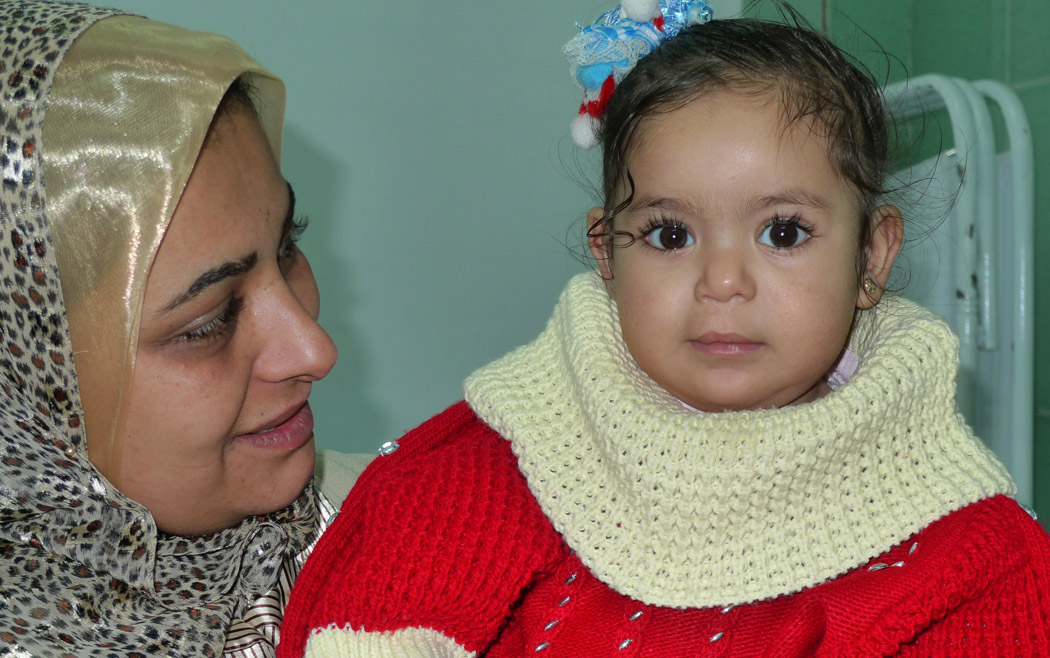Baby cleft lip repair 1 year after surgery with happy Mom