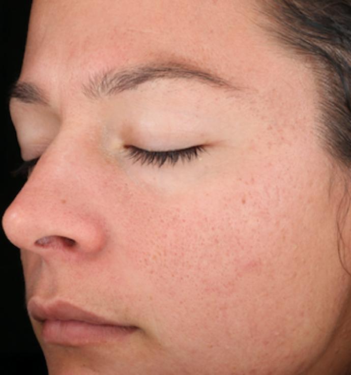SkinMedica Peel After 1.png