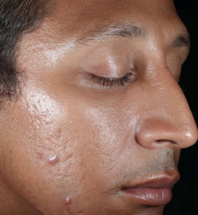 SkinMedica Peel Before 2.png