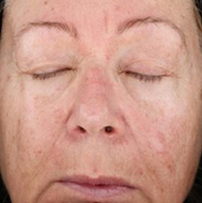 SkinMedica Peel Before 3.png