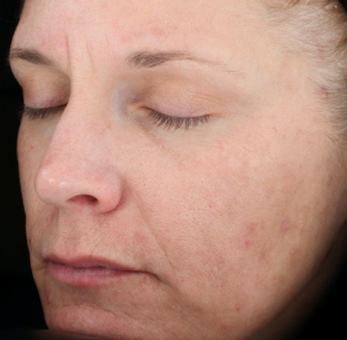 SkinMedica Peel After 4.png