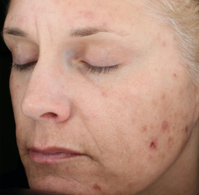 SkinMedica Peel Before 4.png