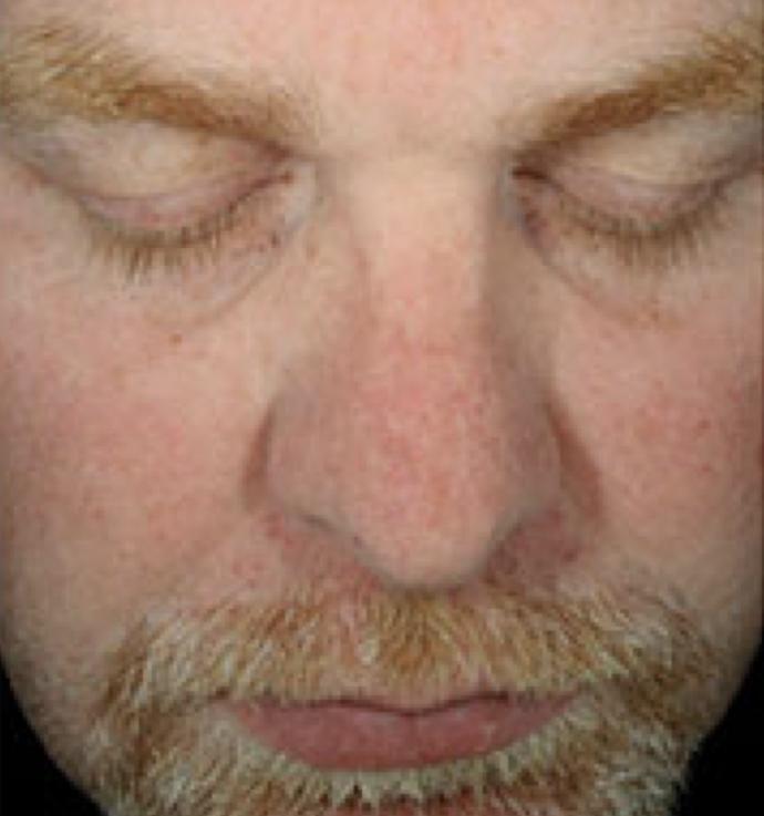 HydraFacial After 4.png