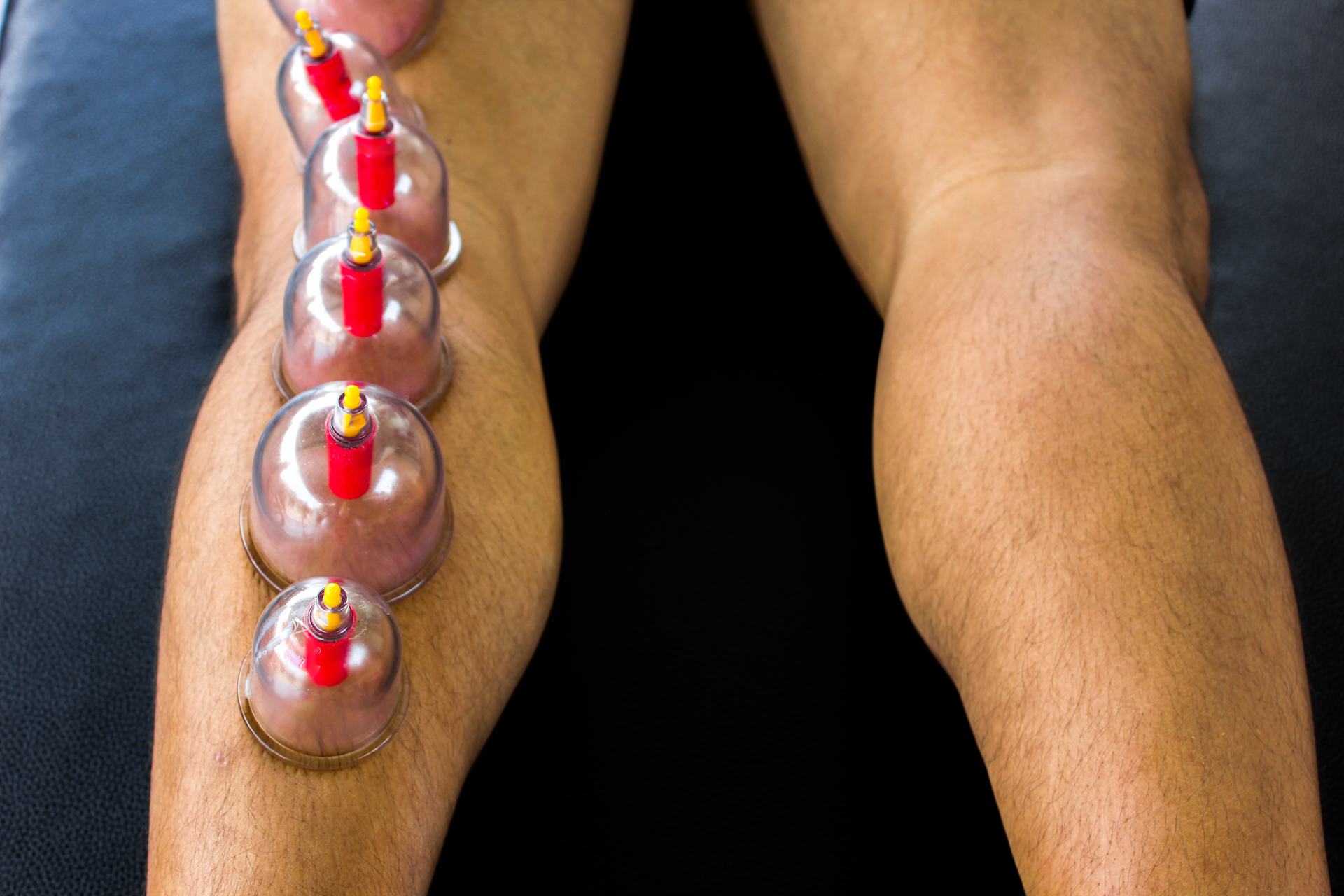 Massage cupping is used to relieve back and neck pain, stiff muscles, anxiety, fatigue, migraines, treatment for high blood pressure, rheumatoid arthritis, fibromyalgia, and even cellulite.