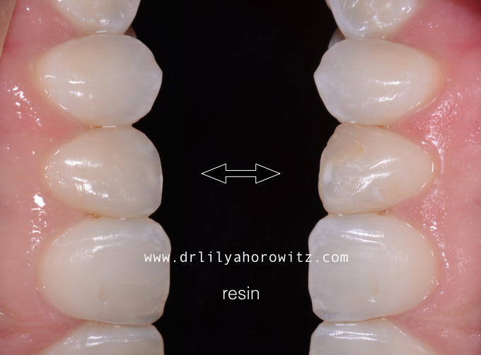 Single composite veneer on this lateral incisor.