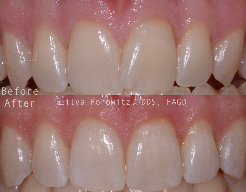 This treatment was completed in 6 months.