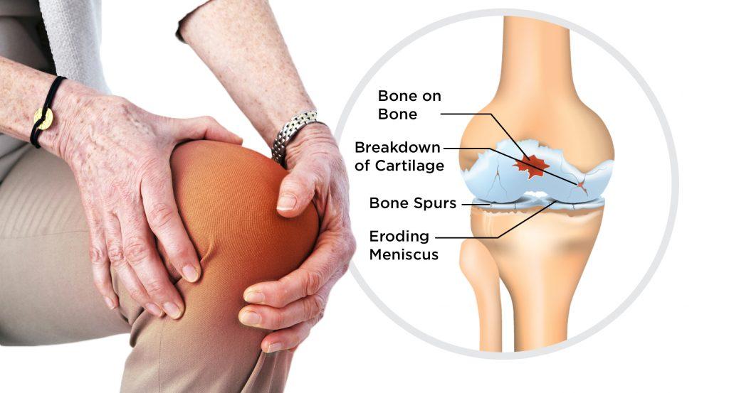 Arthritis_care_of_Texas_knee_v3-1-1024x553.jpg