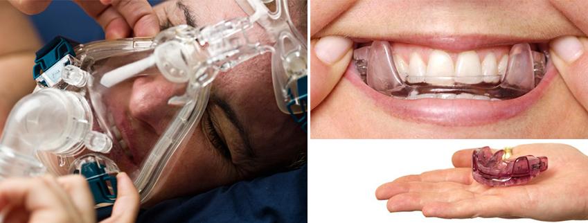 CPAP vs Oral Appliance