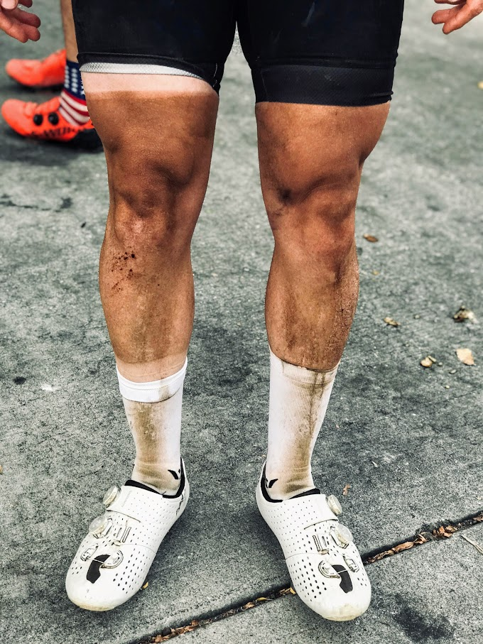 Keeping those tan lines crispy. And yes, of course white socks are the only choice for BWR!