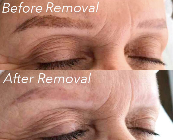 Permanent Makeup Removal Color
