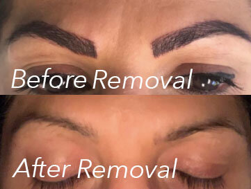 Permanent Makeup Removal Color Correction Orange County Ca