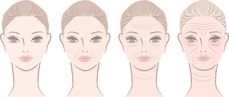 Evolución de la flacidez facial con el paso de los años
