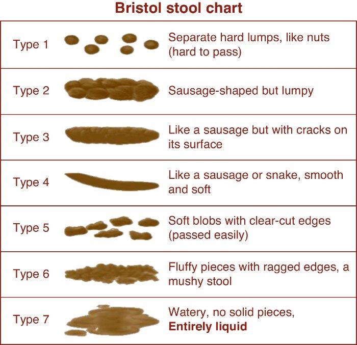 Bristol-stool-chart.jpg