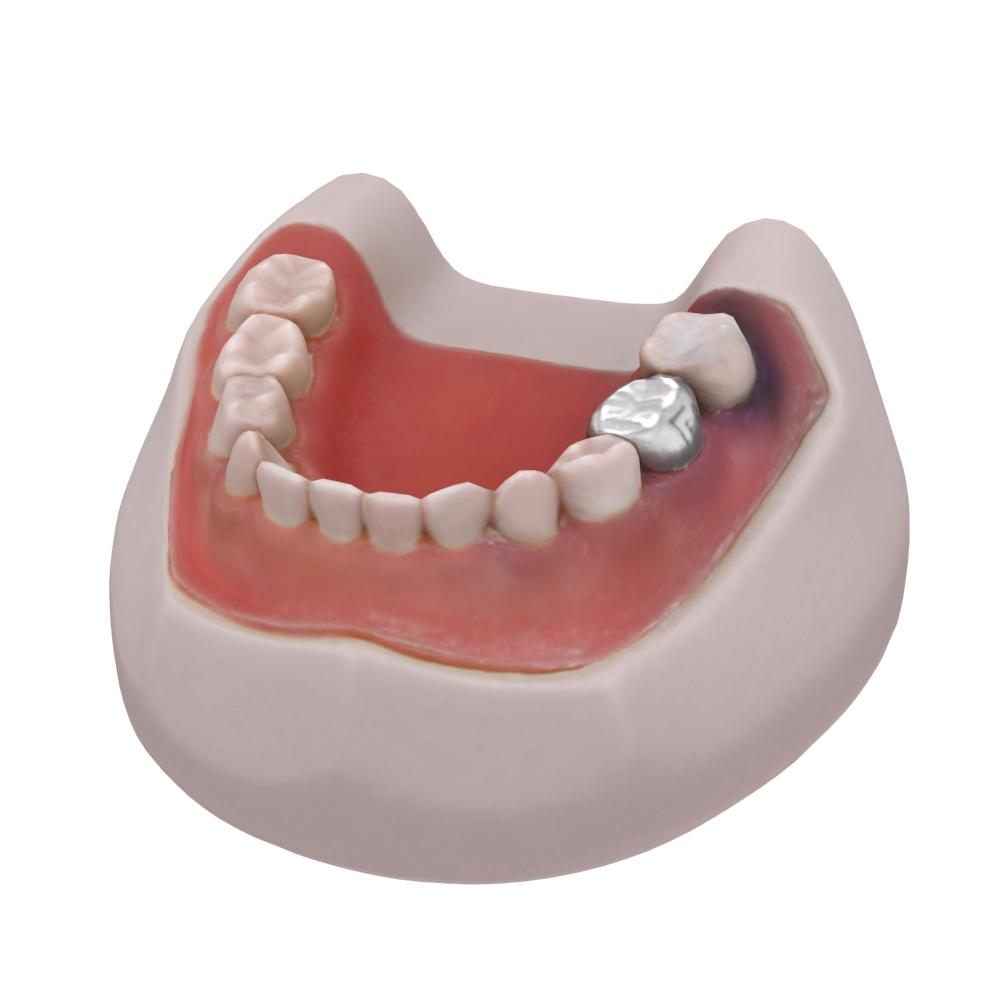 Teeth_Final_Sub1_001.jpg