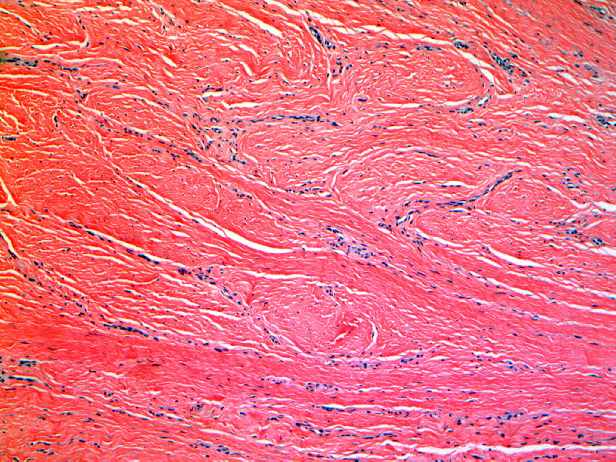collagen bubbles - microneedling.jpg