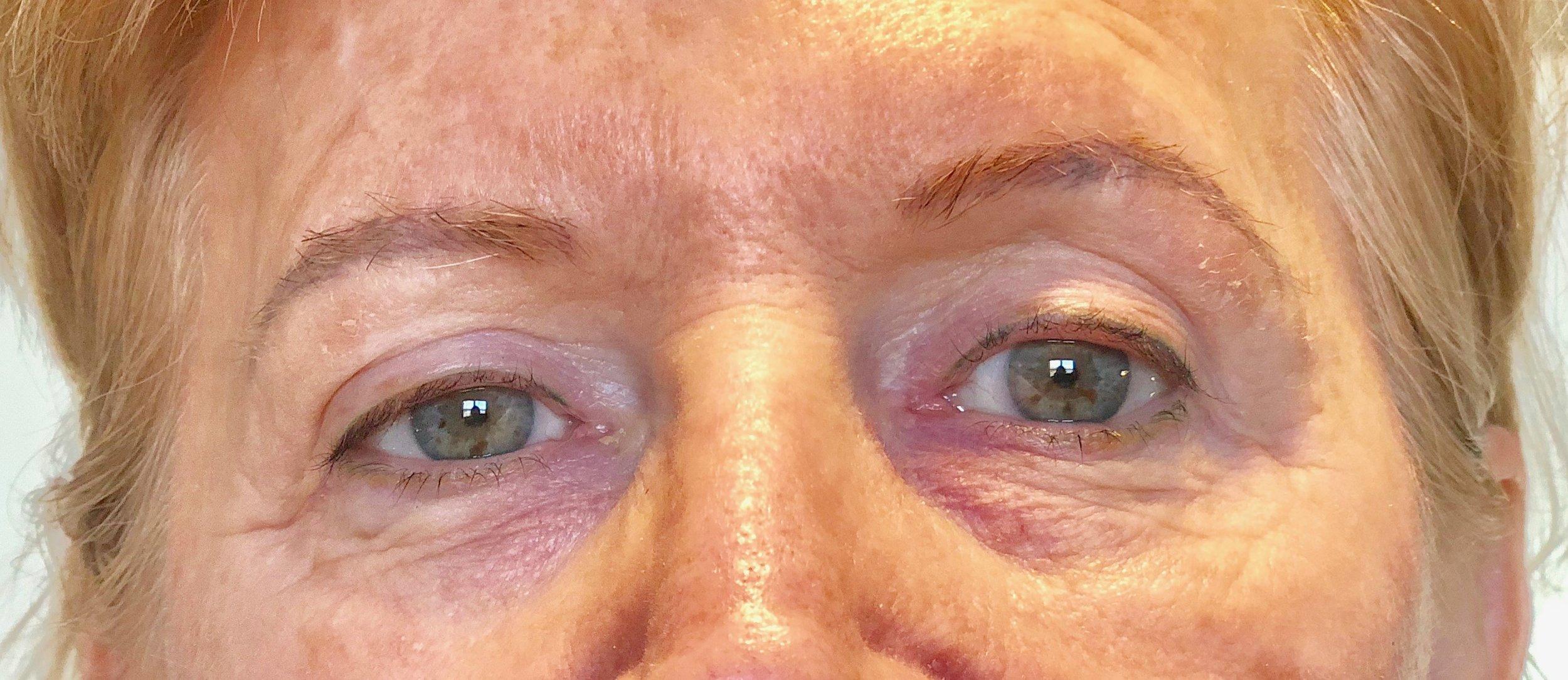 Eyeliner Before Procedure