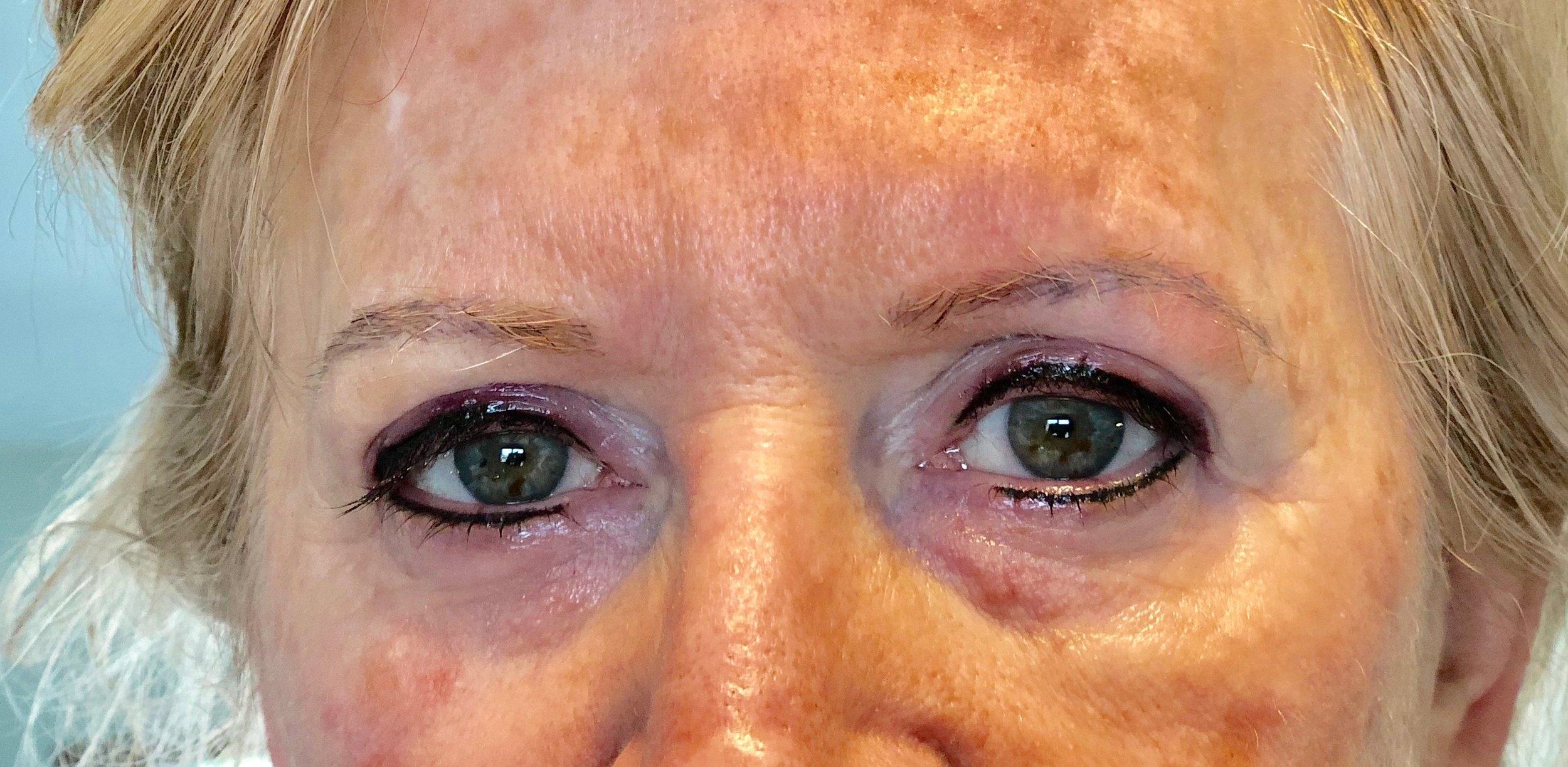 Eyeliner After Procedure