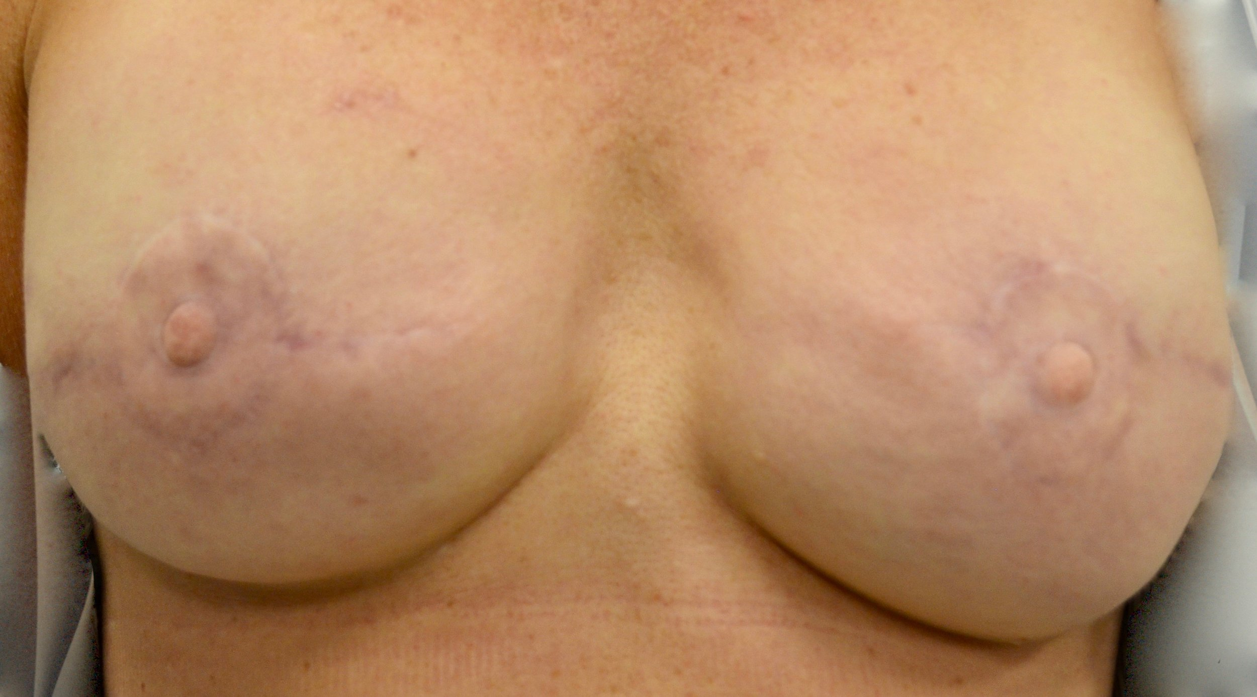 Areola Before