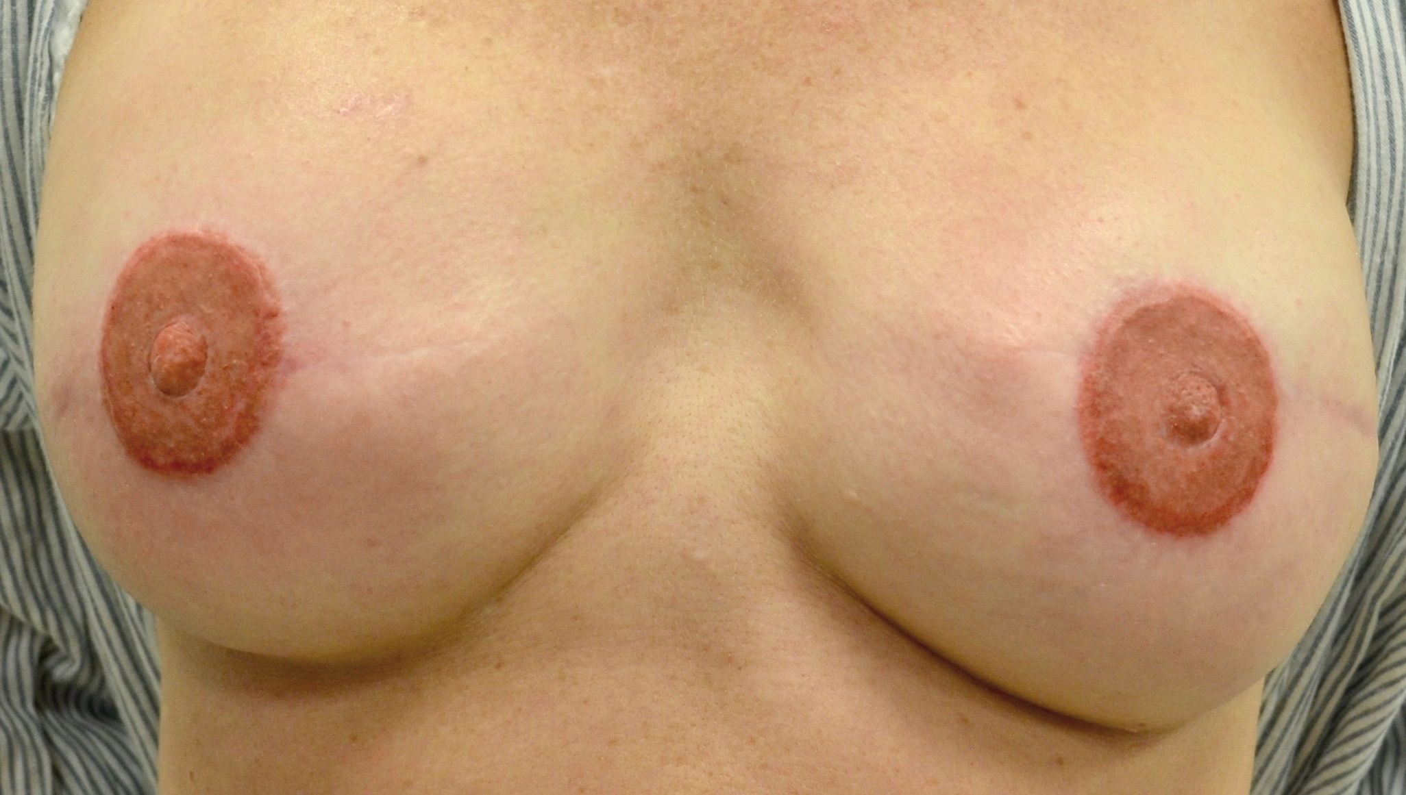 Areola Immediate After